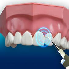 Met 3000trillingen/min. bereikt u de kleinste ruimtes tussen uw tanden.