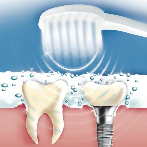 De 84 miljoen luchttrillingen per minuut vormen microbelletjes in de speciale ultrasone tandpasta. Bij het imploderen van deze belletjes worden etensresten, tandplak, bacteriën en verkleuringen voorzichtig verwijderd. (Dit werkt helaas niet met een 'normale' tandpasta.)